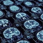 MRIの仕組みってどうなっているの?