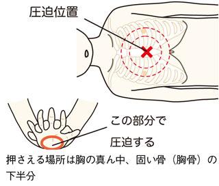 AEDを使った救命の仕方 | AEDで助かる命 | 公益財団法人 日本心臓財団