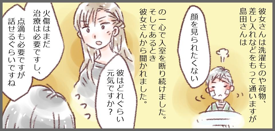 彼女さんは洗濯ものや荷物、差し入れなどをもって通いますが島田さんは「顔を見られたくない」の一心で入室を断り続けました。 そしてあるとき彼女さんから聞かれました。 彼女「彼はどれぐらい元気ですか?」 私「火傷はまだ治療は必要ですし、点滴も必要ですが話せるぐらいですね。」